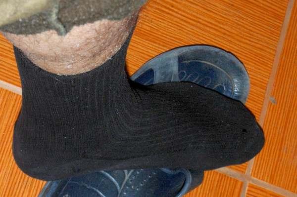 Медицинский 'от отёка' обычной длины носок одет на волосатую ногу.