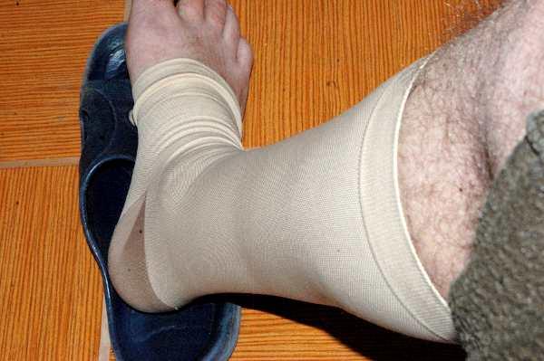 Медицинский 'от отёка' длинный носок одет на волосатую ногу.