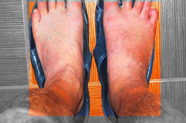 Фотография ног - подагристой и нормальной. Хорошо видна опухоль около косточки на ноге.