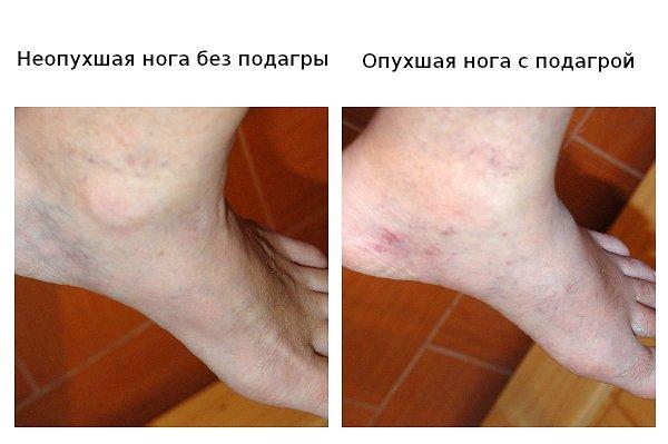 Фотографии пораженной подагрой (на фото внешние признаки - опухоль, покраснение) и здоровой ноги в области ступни.
