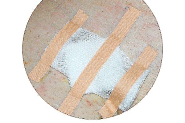 Чтобы под лейкопластырем не повреждалась кожа клеить его приходится, меняя места. Штриховка лейкопластырем 'телесного цвета'.