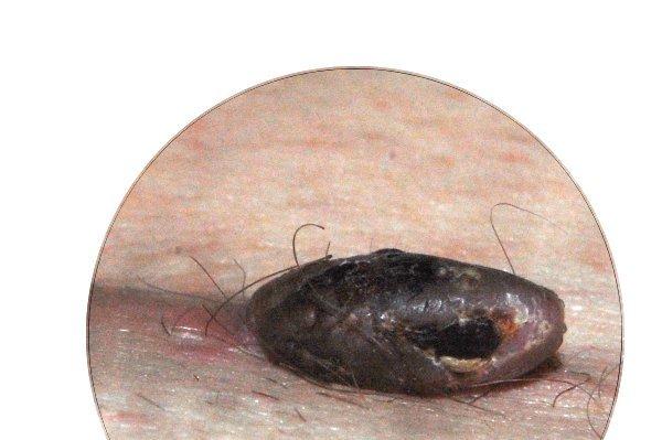 Вид бородавки сбоку. Черная область на бородавке - наверное, и из этого места шла кровь, кровь свернулась (несмотря на таблетки 'тромбекс':-) и образовался струпик.
