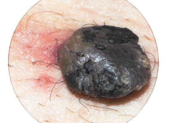 Вид бородавки сверху. Покраснение на коже с припухлостью - это следы воспаления.