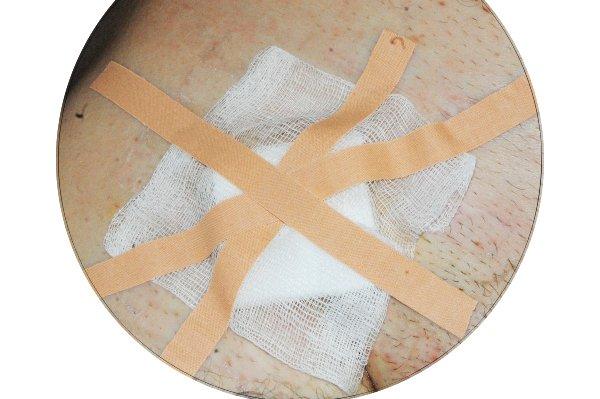 Чтобы под лейкопластырем не повреждалась кожа клеить его приходится, меняя места. Фигура лейкопластырем 'телесного цвета' - флаг Великобритании.