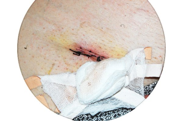 Свидетельтво того, что швы зарастают хорошо - на повязке отсутствуют следы крови, гноя, лимфы.